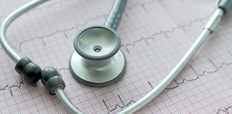 Stethoscope sits on a heart rate chart