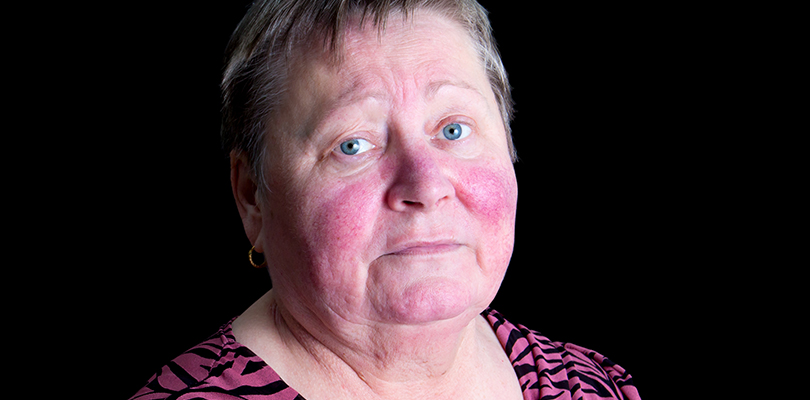 Mature woman with rosacea on her face