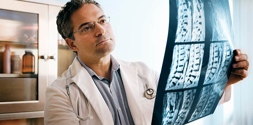 A doctor is reviewing spinal x-rays