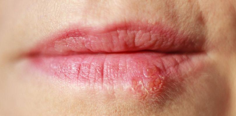 A cold sore on someone's lip.