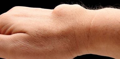 A ganglion cyst on a person's hand.