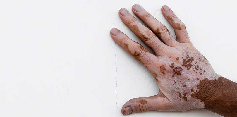 A hand affected by vitiligo placed against a white wall.