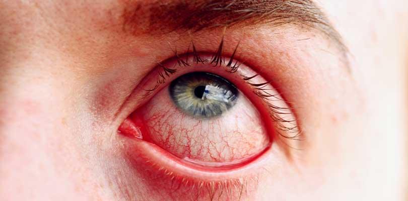 A red eye.